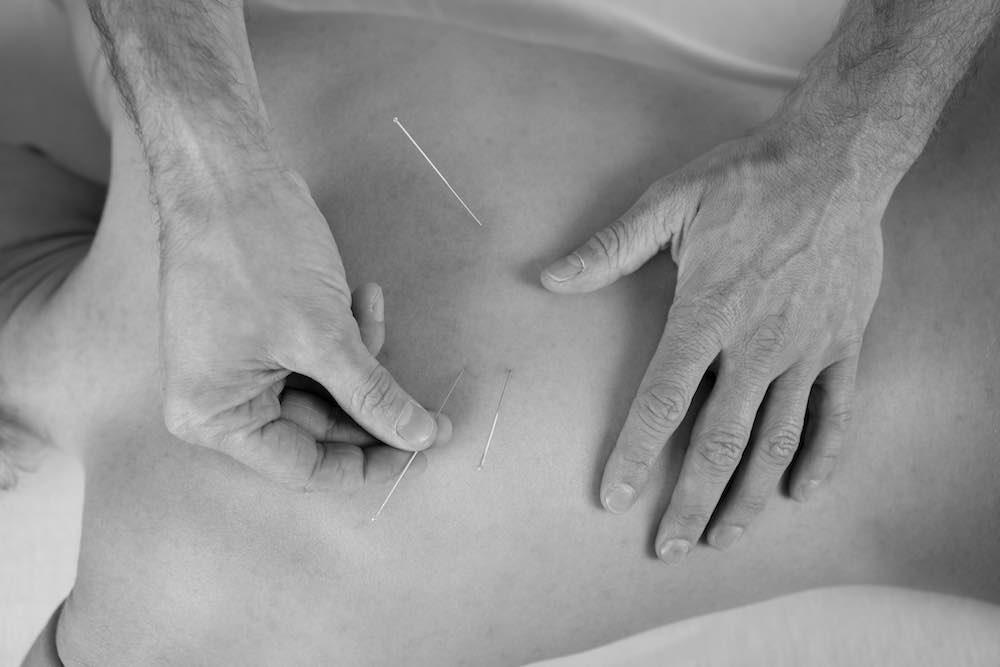 acupuntura-home